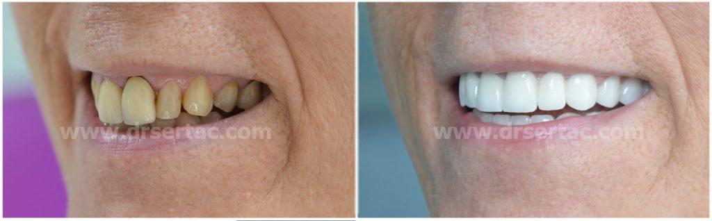 Zirkonyum diş kaplama önce sonra örnek resim