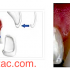 Ön diş kaplamaları