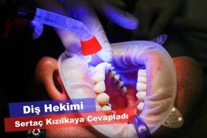 Diş beyazlatma fiyatı ve etki süresi ne kadar?