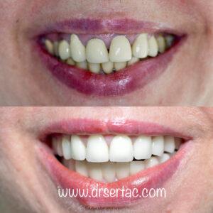 Eski diş kaplama yenilenmesi