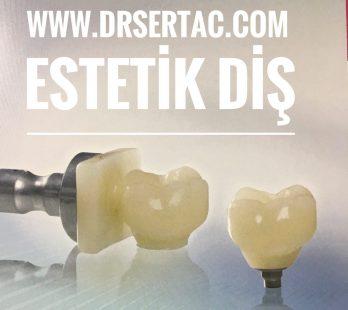 Estetik Diş Yappımı implant ve diş köprüsü