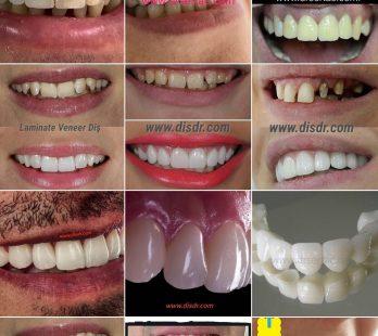 zirkonyum diş çeşitleri