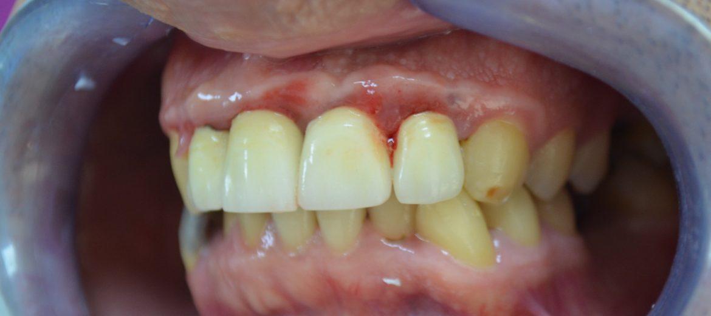 Zirkonyum diş kaplama öncesi porselen metaline alerji reaksiyonu olan ön 4 diş kaplama