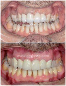 Porselen diş kaplama diş eti sorunu yaratır. Önce sonra diş örneği sonra-bahri