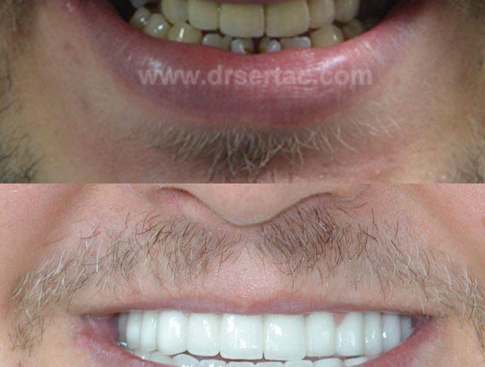 Beyaz diş isteyenler için zirkonyum diş kaplama en iyi estetik sonucu verir.