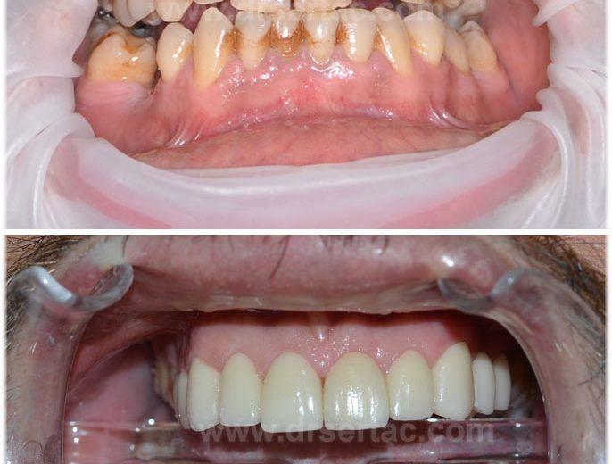 Diş eti ve renk sararması olan hasta zirkonyum diş kaplama ile tedavi edildi.