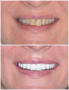Üst dişleri beyaz isteyen hasta için zirkonyum önce sonra resim