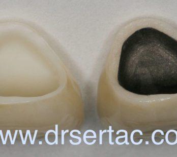Zirkonyum diş kaplama ile porselen diş kaplama farkı.