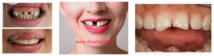 Damaged tooth zirconium