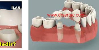 Diş köprüsü ömrü ve fiyatı