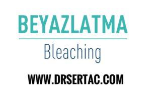 Diş beyazlatma İstanbul diş kliniği
