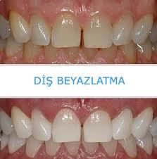 Diş beyazlatma önce sonra örnek foto